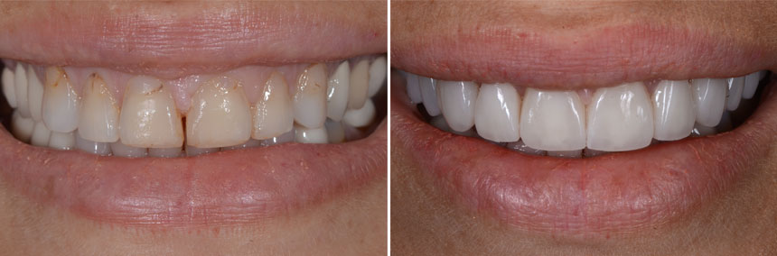 before-after-10-veneers