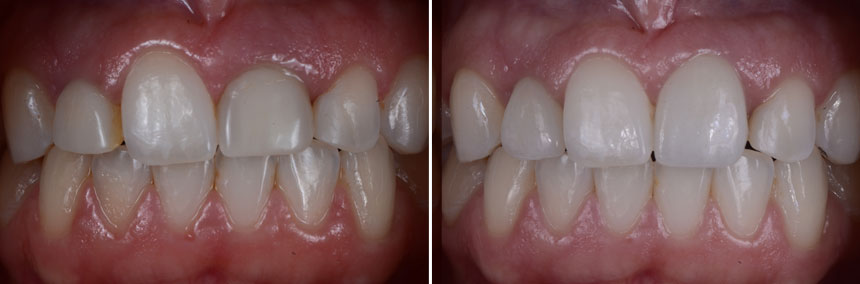 before-after-implant-soft-tissue