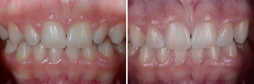 before-after-prepless-veneer-01