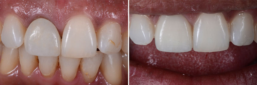 before-after-single-tooth-01