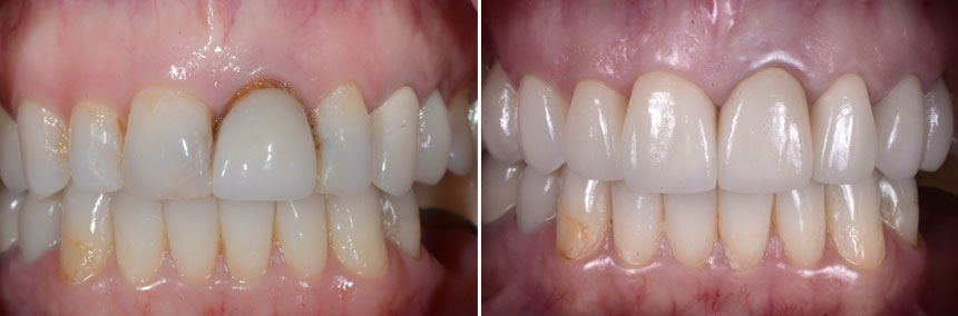 before-after-veneer-crown
