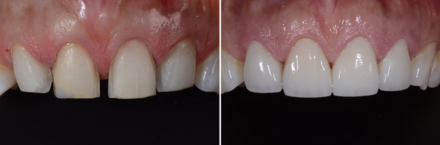 before-after-veneer