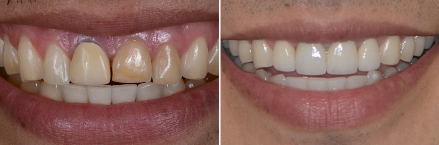 before-after-veneers-crown