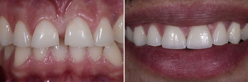 before-after-veneers-gap