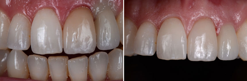 before-after-veneers