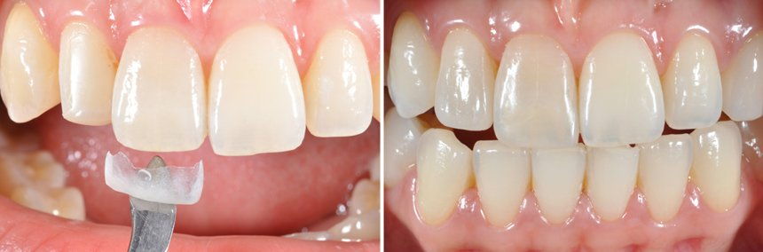 Before After Ceramic Chip Technology Oxnard