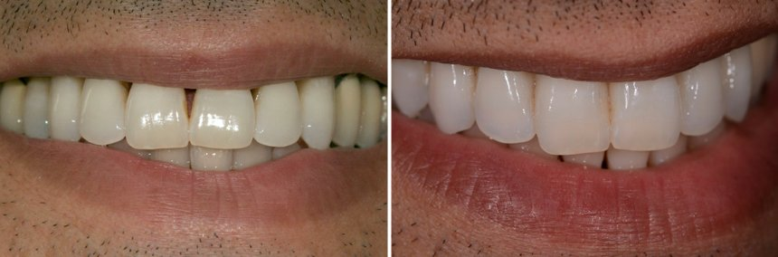 Before After Gum Disease Treatment Oxnard