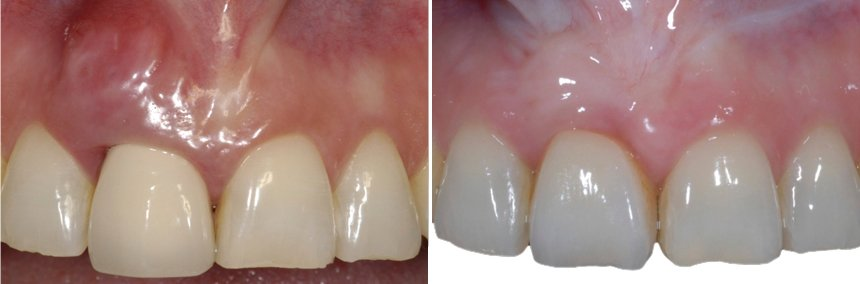 Before After Gum Reconstruction Oxnard