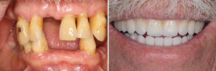 Before After Implant Rehab Oxnard