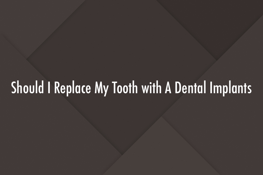 Should I Replace My Tooth with A Dental Implants?