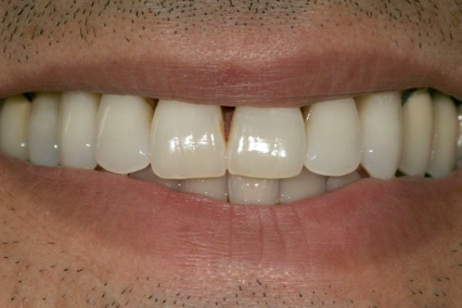 Gum Disease Treatment B1