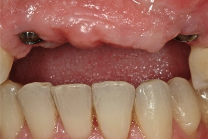 Teeth Replacement B1