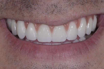 AO4 Implants After